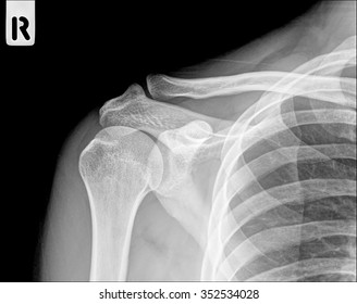 X-ray of a fractured upper arm, anterior-posterior view (shouder bone x-ray image)