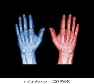 X-ray hand in blue and red tone. Scanned image of broken arm on black background. Finger bone fracture. Traumatology, surgery, implantology, neurosurgery, pain. X ray film of human hands skeleton.