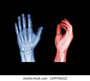 X-ray hand blue and red tone. Scanned image of broken arm on black background. Finger bone fracture. Traumatology, surgery, implantology, neurosurgery, pain. X ray film of human hands skeleton.