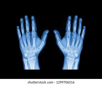 X-ray hand in blue tone. Scanned image of broken arm on black background. Finger bone fracture. Traumatology, surgery, implantology, neurosurgery, joint pain. X ray film of human hands skeleton.
