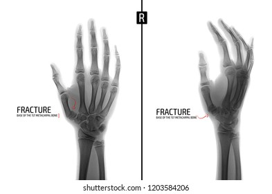X-ray of the hand. Fracture of the base of the 1st metacarpal bone. Marker. Negative.