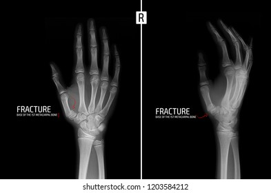 X-ray of the hand. Fracture of the base of the 1st metacarpal bone. Marker.