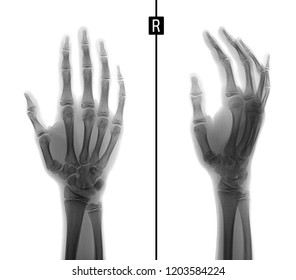X-ray of the hand. Fracture of the base of the 1st metacarpal bone. Negative.