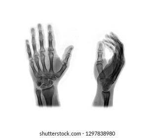X-ray hand monochrome. Scanned image of broken arm invert on white. Finger bone fracture. Traumatology, surgery, implantology, neurosurgery, joint pain. X ray film of human hands skeleton.