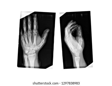 X-ray hand monochrome. Scanned image of broken arm on black background. Finger bone fracture. Traumatology, surgery, implantology, neurosurgery, joint pain. X ray film of human hands skeleton.