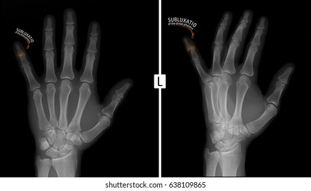 X-ray of the hand. Shows the subluxation of the distal phalanx of the fifth finger of the left hand. Marker.