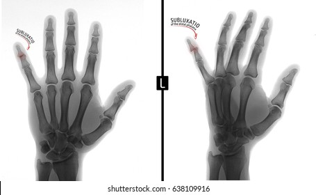X-ray of the hand. Shows the subluxation of the distal phalanx of the fifth finger of the left hand. Marker. Negative.