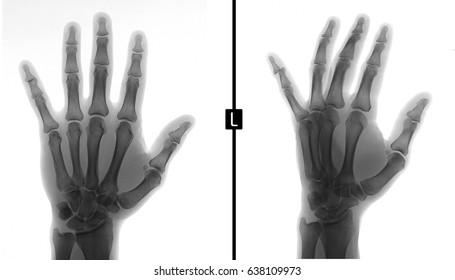X-ray of the hand. Shows the subluxation of the distal phalanx of the fifth finger of the left hand. Negative.