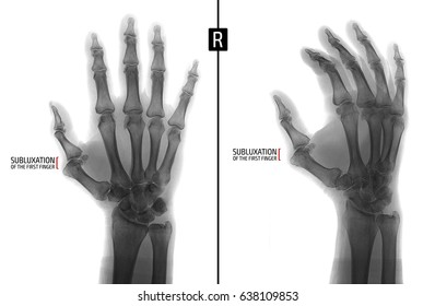 X-ray of the hand. Shows the subluxation of the proximal phalanx of the first finger of the right hand. Marker. Negative.