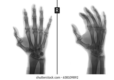 X-ray of the hand. Shows the subluxation of the proximal phalanx of the first finger of the right hand. Negative.