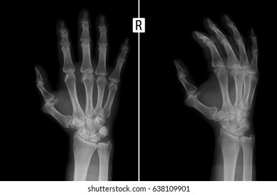 X-ray of the hand. Shows the subluxation of the proximal phalanx of the first finger of the right hand.