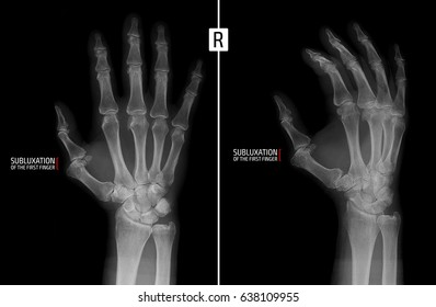 X-ray of the hand. Shows the subluxation of the proximal phalanx of the first finger of the right hand. Marker.