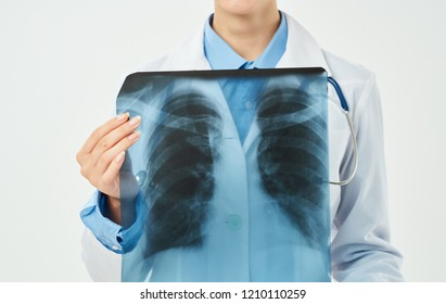 x-ray in the hands of a doctor