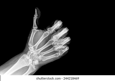 X-ray hands with GOOD sign