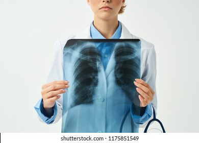X-ray in the hands of a medical professional on a light background