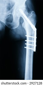 X-ray of a Hip with titanium Implant and Screws.