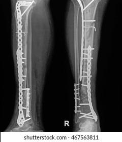 x-ray of human broken leg after surgery, 2 view