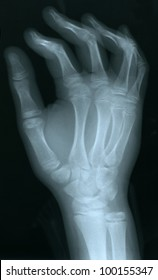 X-ray of a human hand