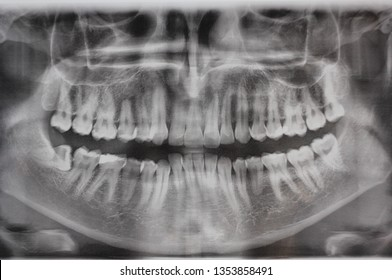 X-ray of human jaw. Male x-ray of teeth, where you can see that the wisdom tooth grows at an angle and gives a lot of inconvenience.