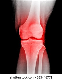 X-ray of human knee bone joint
