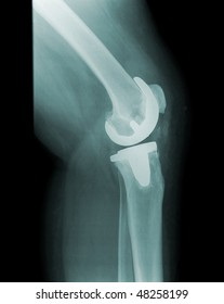 X-ray of a human knee, prothesis, sideview, pain