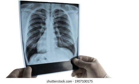 X-ray of human lungs isolated on white background. The doctor holds an X-ray of the lungs in his hands.