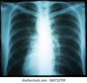 Xray of a human thorax (chest).