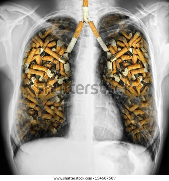 X-ray of a human thorax with effects of cigarette smoking - lung cancer