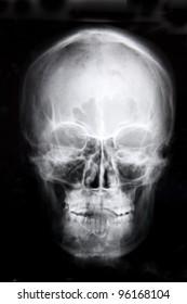 X-ray image