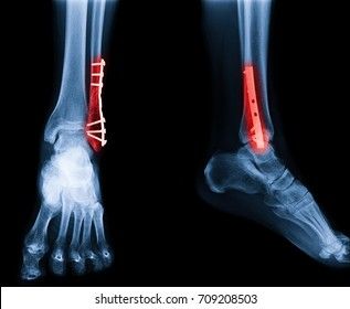 X-ray image of ankle fracture , broken ankle , pott fracture fix by open surgery and metal plate and screw