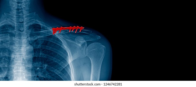 x-ray image and banner design of shoulder in blue tone with black background, post operation clavicle fracture and fixed