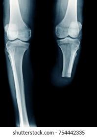 x-ray image below knee amputation