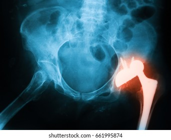 X-ray image of both hip, anteroposterior(AP) view,  showing dislocation of the total hip arthroplasty implant at left