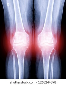 x-ray image of  both knee AP view show Osteoarthritis Knee or OA Knee in red zone.