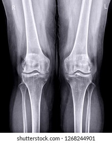 x-ray image of  both knee AP view show Osteoarthritis Knee or OA Knee .