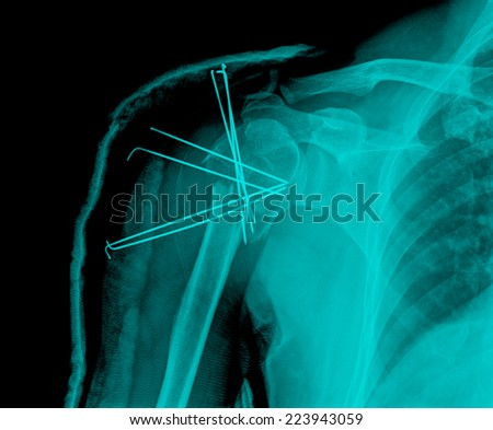 Xray Image Broken Arm Bone Show Stock Photo Edit Now 223943059