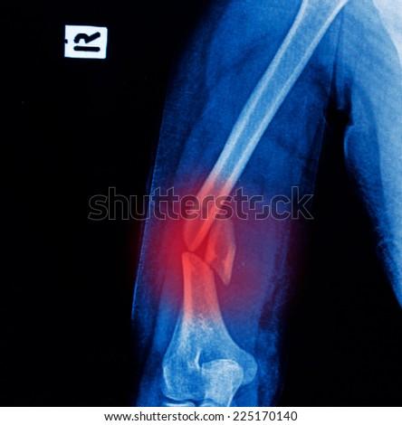 Xray Image Broken Arm Bone Show Stock Photo Edit Now 225170140