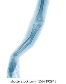 X-ray image of broken forearm, show ulnar and radius fractures