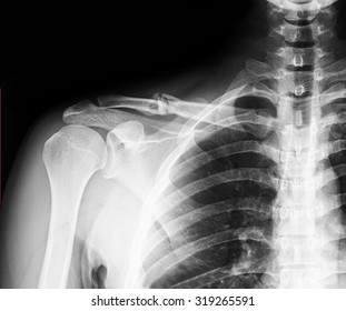 X-ray image of clavicle. Clavicle fracture.