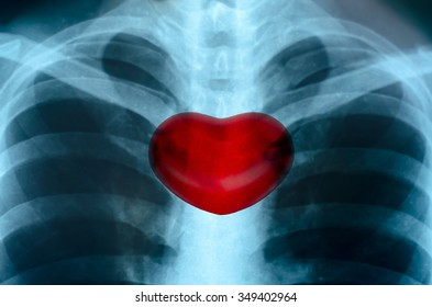 X-Ray Image Close up Of Human Chest With Medical Structure of the Heart