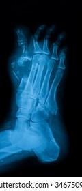 X-ray image of diabetic foot, oblique view.