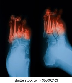 X-ray image of diabetic foot, PA and oblique view.