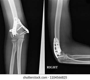 X-ray image film fracture elbow. Forearm x-rays image showing plate and screw fixation.