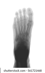 X-ray image of foot, AP (anteroposterior) view, showing the second and third metatarsal bone fractures