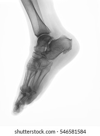 X-ray image of foot, oblique view, shows heel spur syndrome