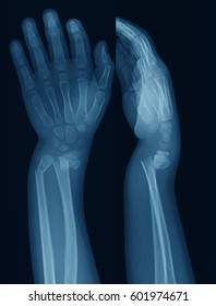 X-ray image of forearm, AP(anteroposterior) and lateral views, a 7 year old boy, traffic accident