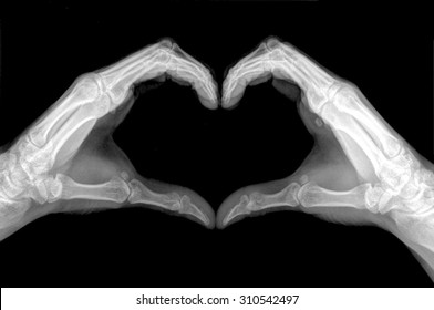 x-ray image of hands making heart symbols.