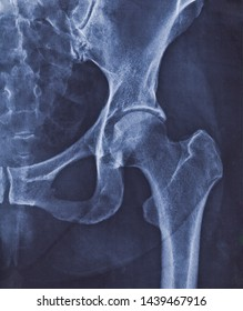 X-ray image of hip joint with signs of coxarthrosis