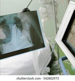 X-ray image in hospital ward.