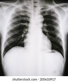 X-Ray Image Of Human Ches tbones for a medical diagnosis